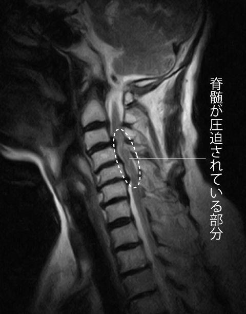 頚椎 mri