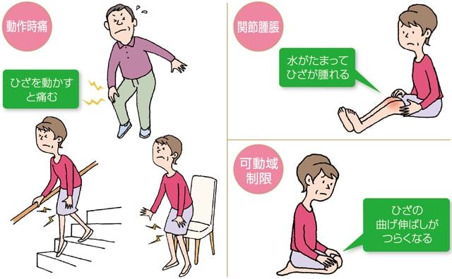 変形性膝関節症(1) なりやすい方、メカニズム、症状について