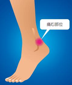 三角骨障害で痛む部位のイラスト